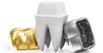 Обзор разновидностей коронок на зубы – какие из них лучше выбрать