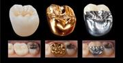 Как выбрать тип коронок не зубы
