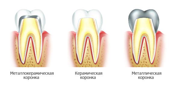 Металлические коронки на зубы - какие лучше
