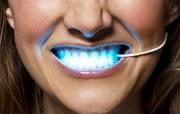 Показания к лазерному отбеливанию зубов