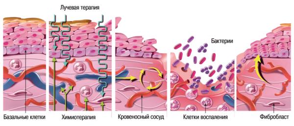 Мукозит после химиотерапии