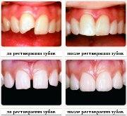Современное наращивание передних зубов