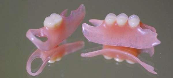 Нейлоновые зубные протезы отзывы цены