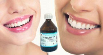 Все об отбеливании зубов перекисью водорода и отзывы о процедуре