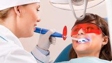 Насколько эффективно и безопасно лазерное отбеливание зубов — отзывы