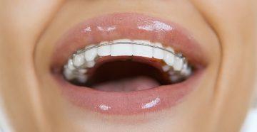 Особенности и уход за пластинами для выравнивания зубов