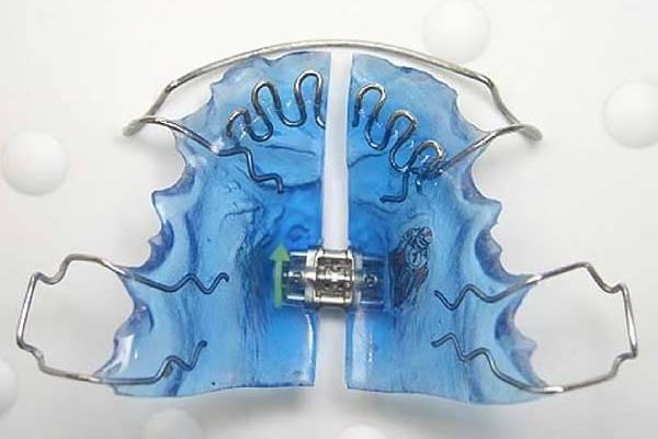 Пластины для выравнивания зубов цена