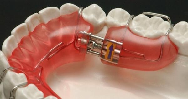 Пластины для выравнивания зубов у детей фото