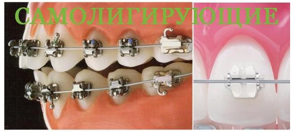 Зубы после брекетов фото