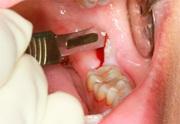 Как удаляют ретинированный зуб