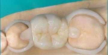 Что собой представляет зубной протез бабочка