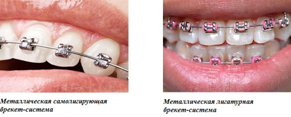 Зубы после снятия брекетов фото