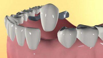 Несъемный адгезивный мостовидный протез и его особенности