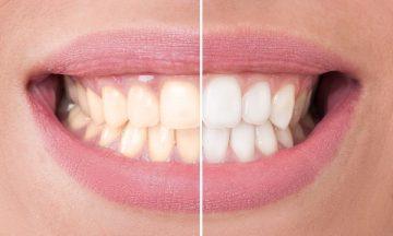 Чем быстро отбелить зубы в домашних условиях – гели, пасты и другие средства