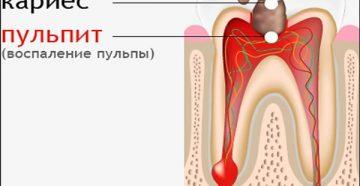 Что такое пульпит зуба и причины его появления