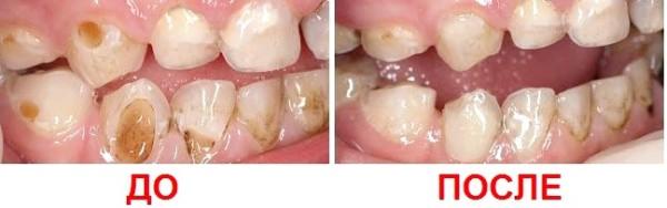 Фото зубов до фторирования и после