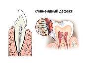 Как лечить клиновидный дефект зубов