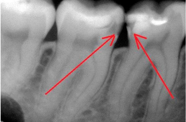 Обточенный зуб реагирует на холодное и горячее
