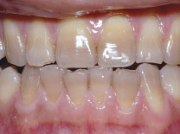 Фото тетрациклиновых зубов