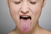 Почему язык в трещинах