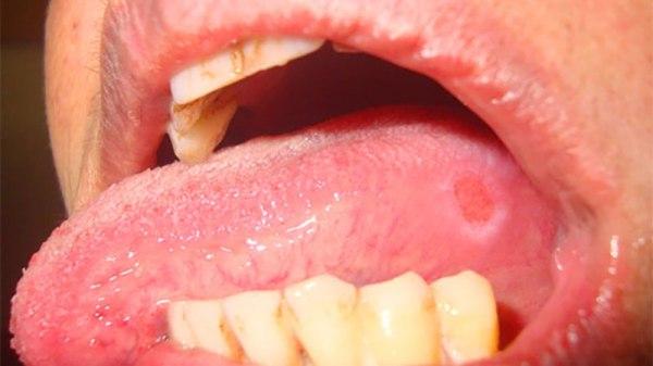 Фото язвенного стоматита