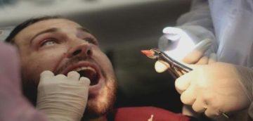 Как в домашних условиях и в клинике можно остановить кровь после удаления зуба