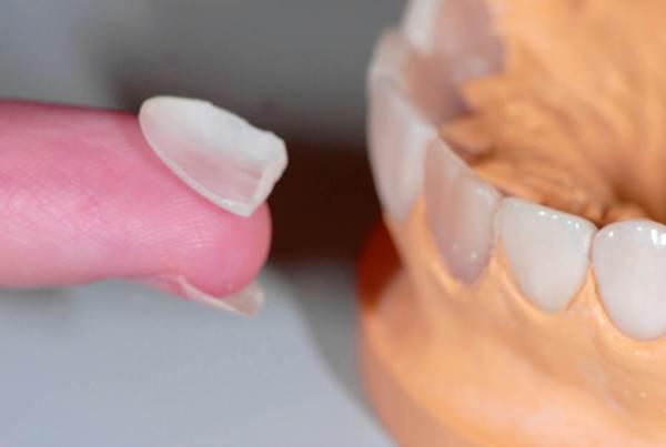 Как восстановить зубную эмаль в домашних условиях