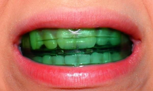 Как выровнять передние зубы без брекетов