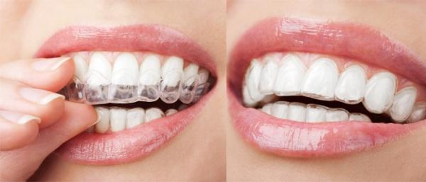 Выравнивание зубов без брекетов в домашних условиях