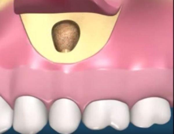 Киста зуба симптомы фото