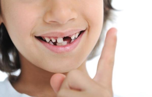 Когда должны выпадать молочные зубы