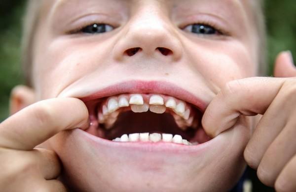 Почему выпадают молочные зубы