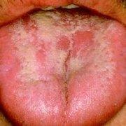 Чем лечить кандидозный стоматит