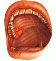 Лечение катарального стоматита