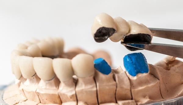 Лабораторные этапы изготовления металлопластмассовых коронок