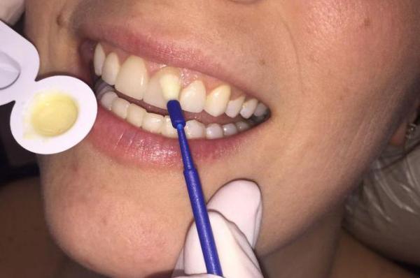 Реставрация тетрациклиновых зубов
