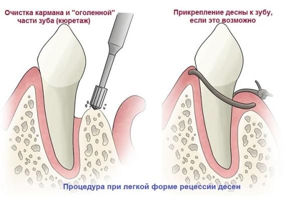 Десна отошла от зуба при беременности