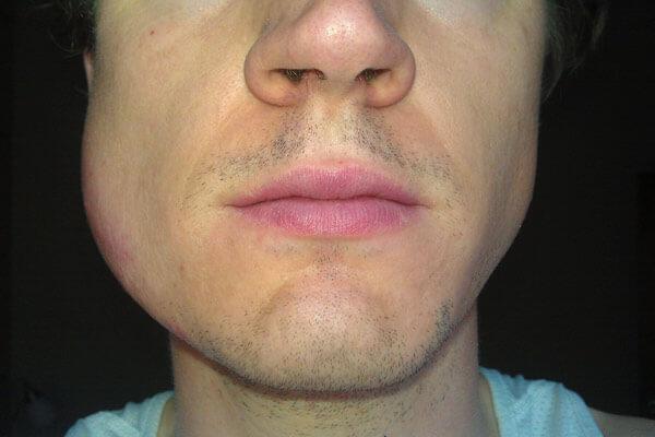 После удаления зуба почему опухает щека