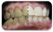 Можно ли отбелить тетрациклиновые зубы