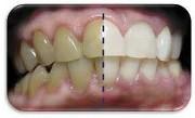 Как отбелить тетрациклиновые зубы