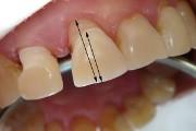 Почему десна отошла от зуба