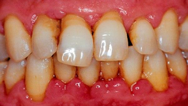 Запломбированный зуб стал реагировать на холодное и горячее