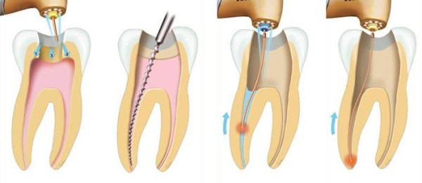 Как лечить пульпит зуба народными средствами