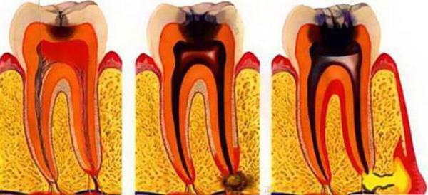 Пульпит зуба лечение цена