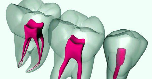 Пульпит трехканального зуба
