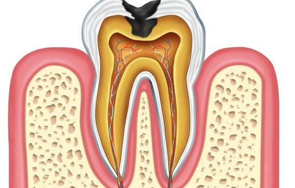 Что такое пульпит зуба фото
