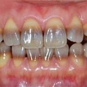 Методы реставрации тетрациклиновых зубов