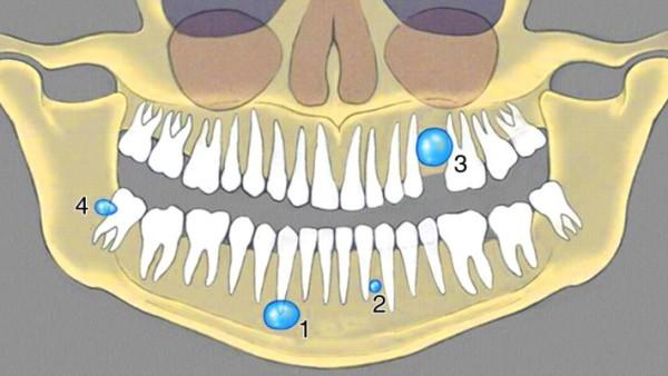 Фото кисты зуба и симптомы