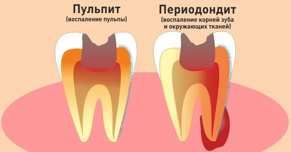 Что такое пульпит зуба