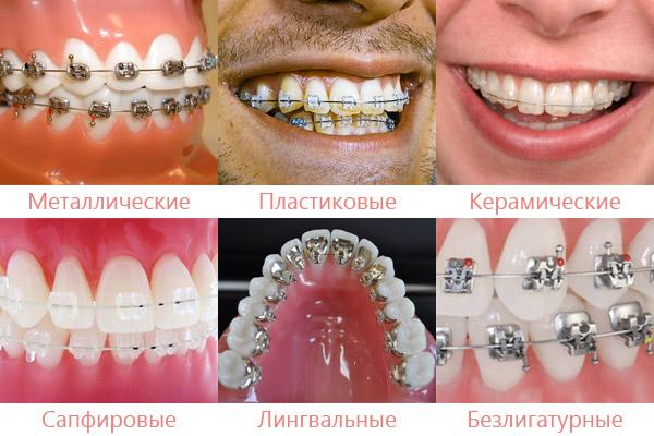 Сколько стоят прозрачные брекеты на зубы